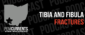 A podcast that will give you a leg up on tibia and fibula fractures